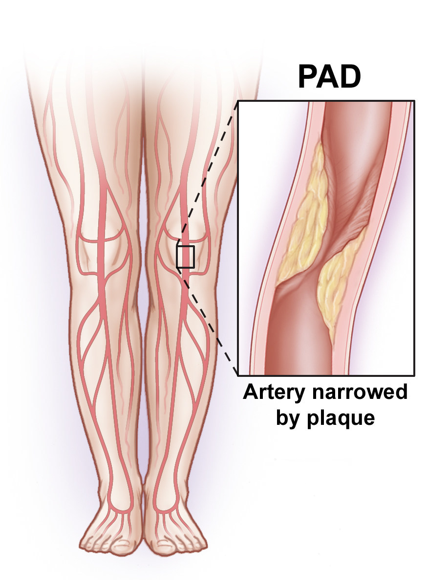 Leg artery disease, also called peripheral arterial disease (PAD) can be mild or deadly and should be treated by a vascular surgeon.