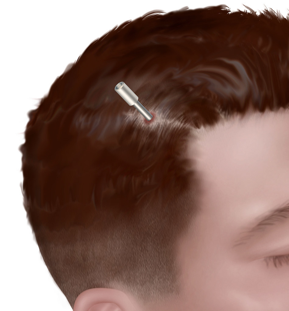 The NeuroBlate procedure is performed through a pencil-sized opening and is typically closed with one to two stitches.