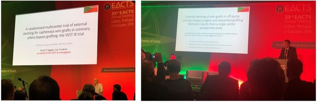 Prof. David Taggart, Oxford, UK (Left) and Prof. Luca Weltert, Rome, Italy (Right) Presenting the latest clinical experience with VEST technology at the EACTS 2019 Annual Meeting in Lisbon, Portugal.
