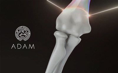 ADAM will soon take to clinical trials 3D-printed bones that reduce the current cost for synthetic bone production by half.