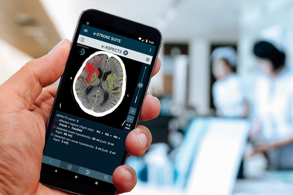 Brainomix's AI-Driven Software Gives Doctors Reliable Information to Treat Stroke Patients