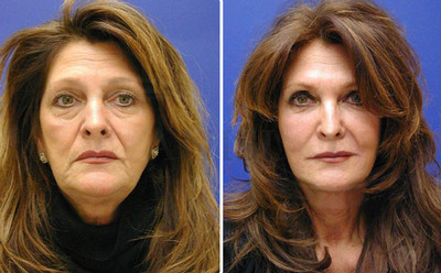 Before and after photos illustrate a natural transformation by artistic facial plastic surgeon Dr. Paul Stanislaw with the Stanislaw Facial Plastic Surgery Center in Avon, CT that offers fly-in facelifts for out of area patients.