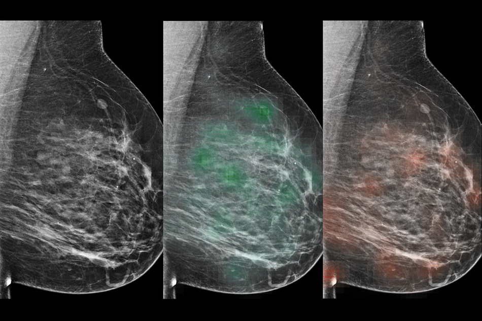 "An AI tool learned to predict which lesions were likely malignant (red ""heatmap"") or likely benign (green heatmap), with potential to aid radiologists in the diagnosis of breast cancer."