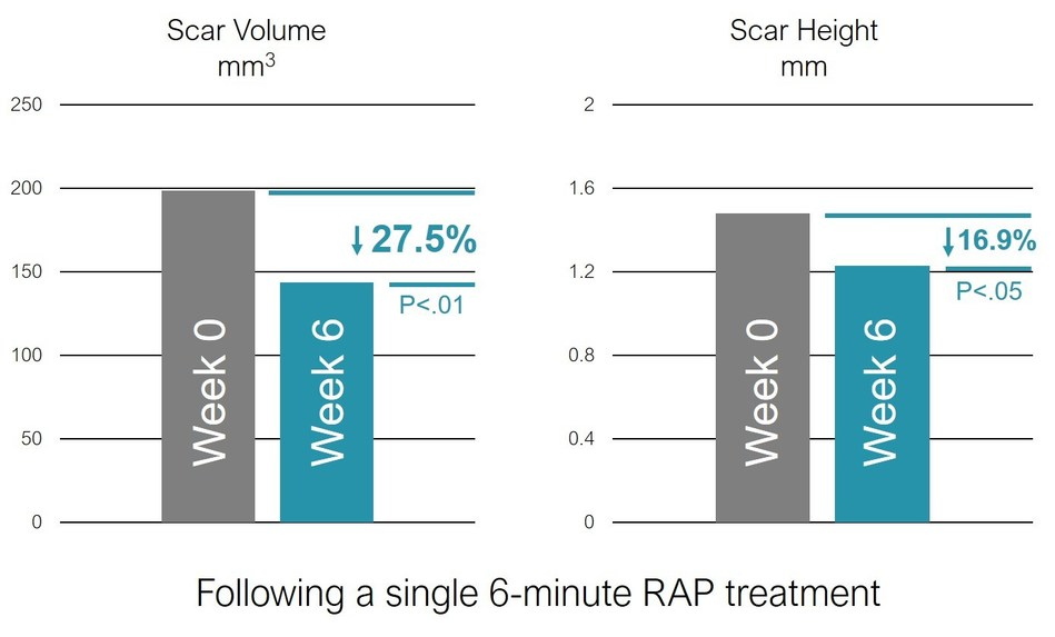 Soliton announces positive interim clinical trial results with 27% average reduction in scar volume from single non-invasive treatment. The graph provides a recap of the average for nine scars as one patient was not able to come in for this 6-week timepoint. (PRNewsfoto/Soliton, Inc.)