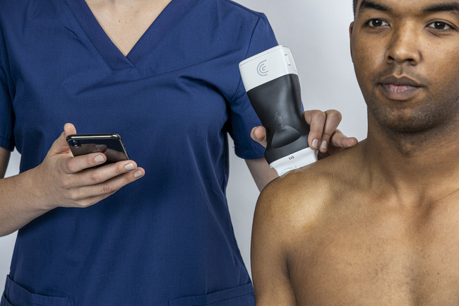 Clarius Handheld Ultrasound Scanners help physicians see clearly beneath the skin.