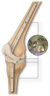 The REMEDY® Stemmed Knee Spacer's interconnected pores allow for extended antibiotic elution while improving OR efficiency vs handmade IM dowels.