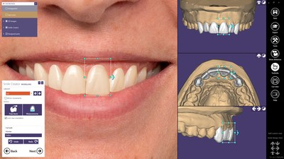 exocad ChairsideCAD is an open and device and manufacturer-neutral CAD/CAM software for clinical environments. With the new add-on module Smile Creator, now available with ChairsideCAD 2.3 Matera, highly aesthetic restorations can be virtually planned simply, quickly and predictably by combining patient photos and 3D situations.