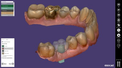 With the new ChairsideCAD 2.3 Matera modules, the software can intelligently expand the individual practice's offerings. With the new Implant Module, abutments and screw-retained crowns as well as bridges can be designed quickly and easily.