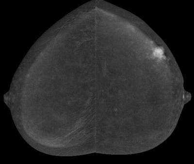 The CMIST Trial seeks to determine if contrast enhanced spectral mammography (CESM) screening provides more accurate cancer detection than current screening methods in women with dense breasts.
