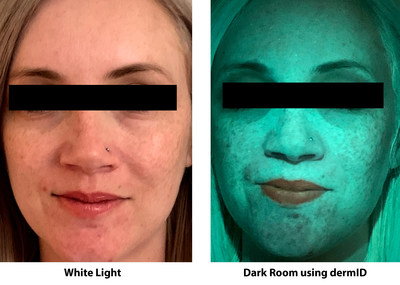 MDR Aesthetics Launches dermID, a Novel Skin Imaging