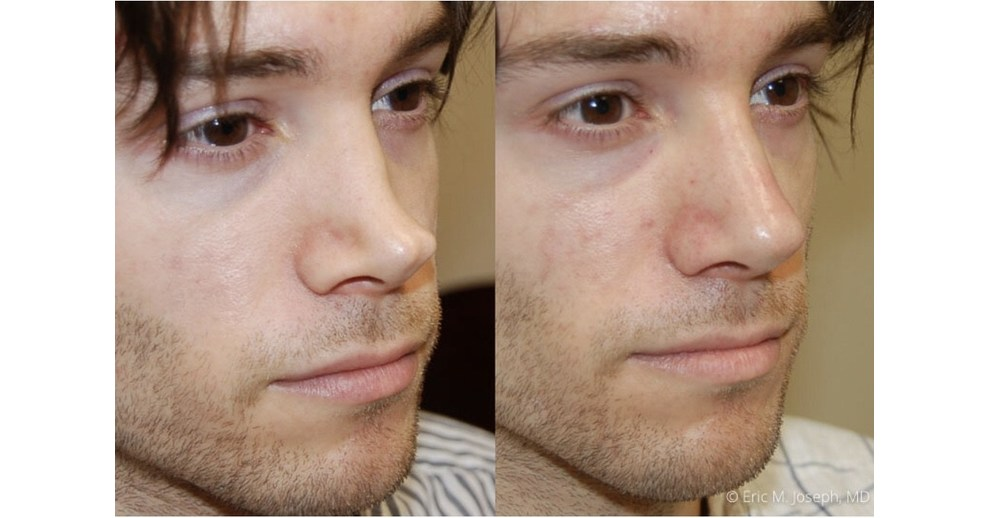 How To Know If A Permanent Non Surgical Nose Job Is Too Good To Be True By Eric M Joseph M D