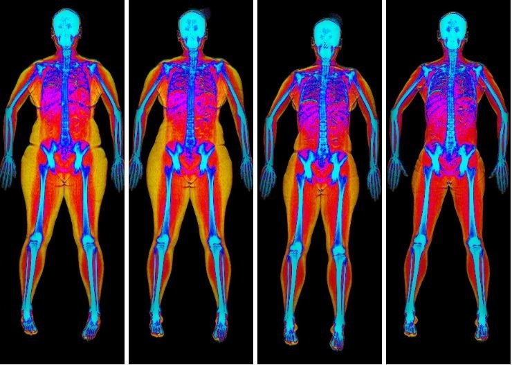 Bodyscan shows what eating 400 fewer calories a day can achieve – 19kg of fat-loss in a year