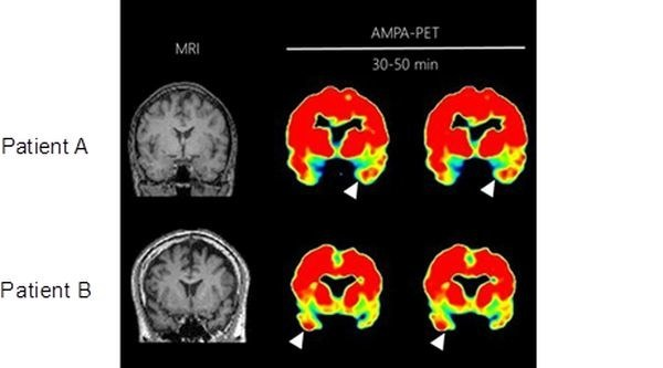 PET scans of two patients with mesial temporal lobe epilepsy showing elevated accumulation of AMPA receptors at the white arrows