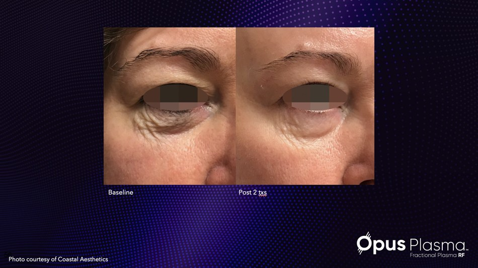 Alma's new Opus Plasma addresses global or localized textural and skin quality concerns.
