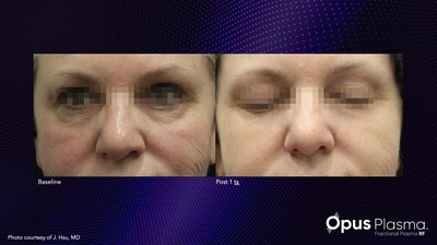 Before and after one treatment with Alma's new Opus Plasma.