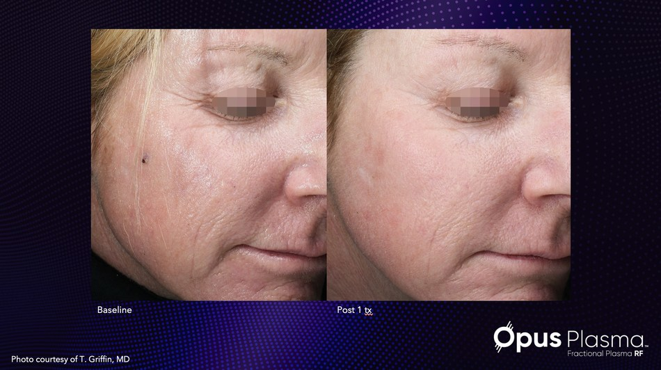 Improve skin quality and texture with Alma's new Opus Plasma.