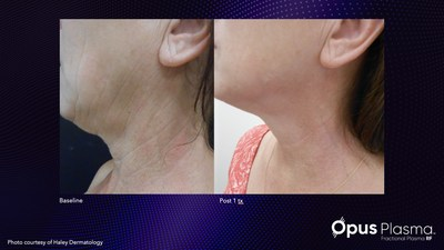 Visible results after one treatment with Alma's new Opus Plasma.