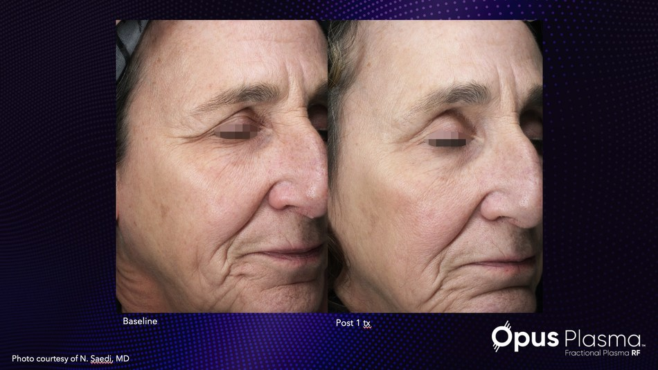 Results with just one treatment of Alma's new Opus Plasma.