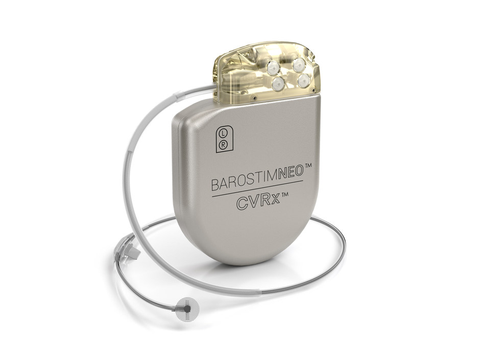 Hackensack Meridian Hackensack University Medical Center announced it is the first hospital in the nation to successfully implant the world's first heart failure neuromodulation device, BAROSTIM NEO™, pictured above. Picture provided by CVRx.