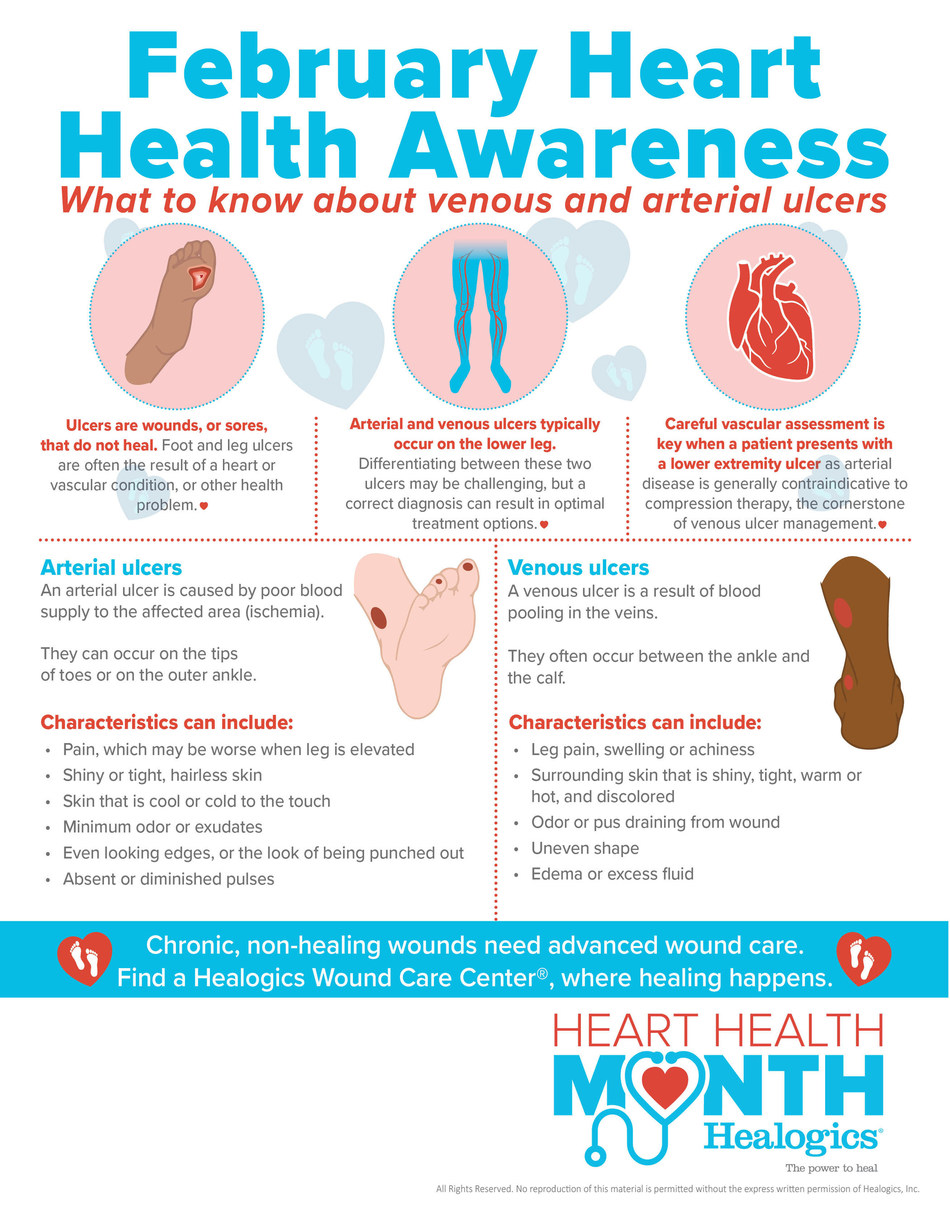 Healogics Heart Health Awareness Infographic