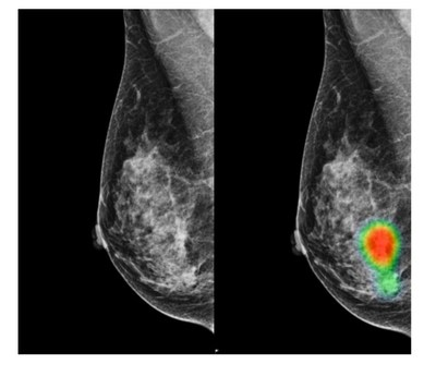Mammograms of a 49-year-old woman with invasive lobular carcinoma on the right-side breast. A small mass with micro-calcifications on the right-side breast was detected correctly by AI with an abnormality score of 96%. This case was recalled by 7 out of 14 radiologists (4 breast radiologists and 3 general radiologists) initially (without AI) and all 14 radiologists recalled this case correctly with the assistance of AI.