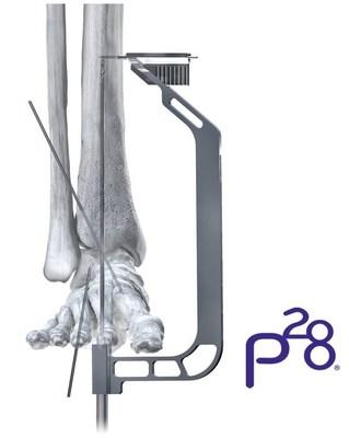 Phantom® TTC Nail Precision Guide