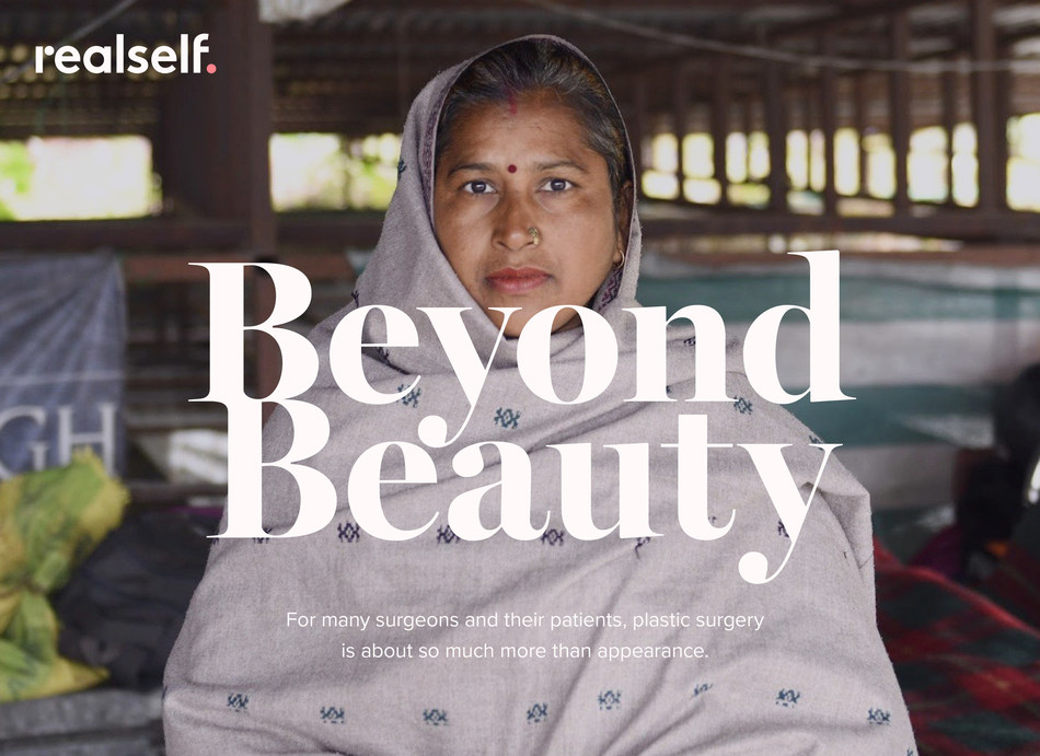 """RealSelf highlights nonprofit organizations and humanitarian plastic surgeons in the new editorial series """"Beyond Beauty"""""""