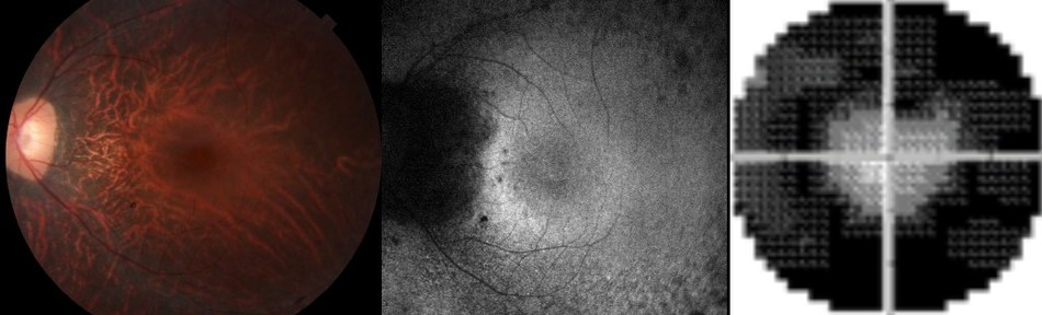 The retinal pigment degenerates in XLRP-RPGR, which changes its appearance on exam (left panel) and on specialized photography (center). This leads to tunnel vision (right).