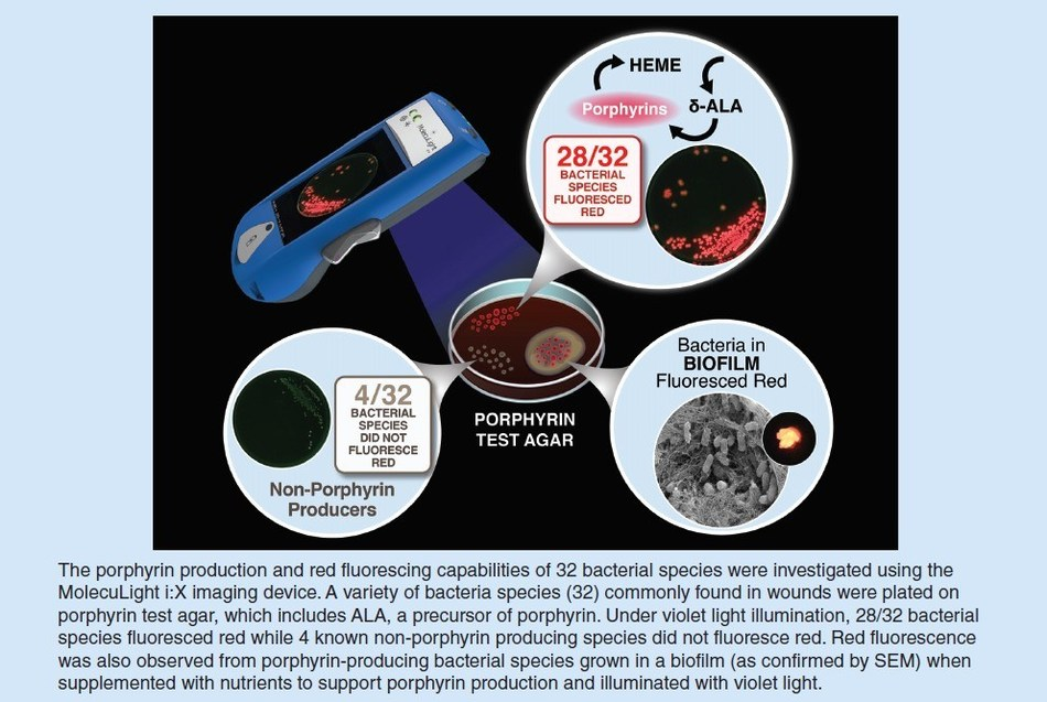 First Published Study to Report In Vitro Detection of Fluorescence from Bacteria in Biofilm with MolecuLight i:X Point-of-care Wound Imaging Device (CNW Group/MolecuLight)