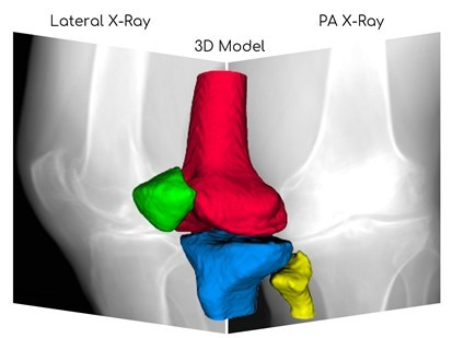 3D Reconstruction of Knee from X-ray Images