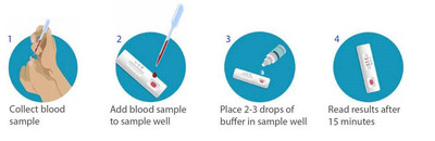 BD, BioMedomics announce the launch of a rapid serology test to detect exposure to COVID-19 at the point of care in 15 minutes. The test is completed in four, simple steps and will be available in April.