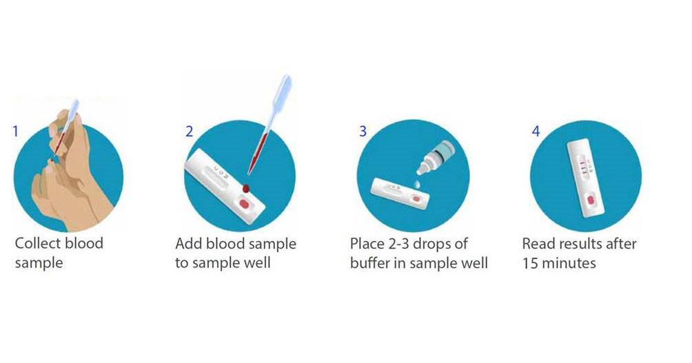 BD, BioMedomics Announce Launch of Rapid Serology Test to Detect Exposure  to COVID-19 - Mar 31, 2020