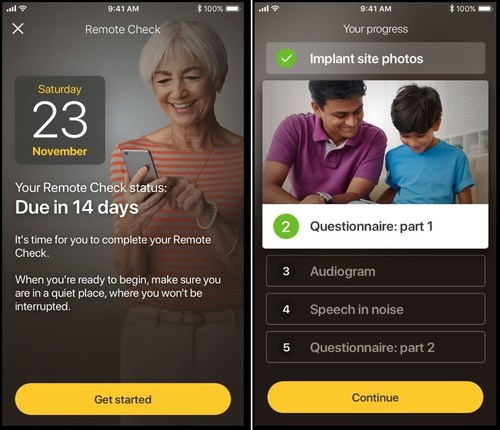 Remote Check is designed to be a convenient, at-home testing tool that allows Cochlear recipients with a Cochlear™ Nucleus® 7 Sound Processor to complete a series of hearing tests from their compatible iOS device using the Nucleus Smart App. Results are then sent remotely to the recipient's clinic for review by their clinician, so a clinician can quickly determine whether a patient is progressing well, or whether further clinical intervention is required.