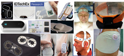 Conductive Inks: Flexible Hybrid Electronics, In-Mold Electronics, Skin Patches, E-Textiles. Source: IDTechEx