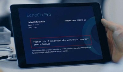 EchoGo Pro on tablet (PRNewsfoto/Ultromics)
