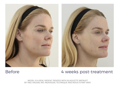 """""""Silhouette InstaLift® has long-lasting effects. It also provides an immediate lift. I instantly noticed the lift in my mid-face and felt like it put my cheeks back where they once were.""""  - Mickey, Silhouette InstaLift Patient"""
