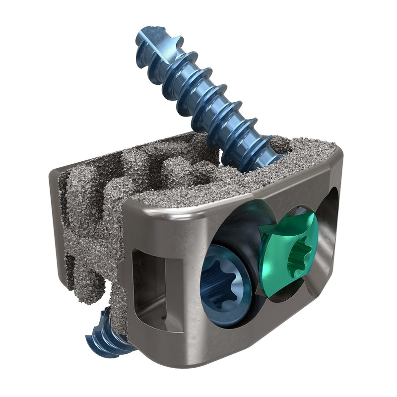 SPIRA®-- C Integrated - stand-alone integrated cervical fixation system