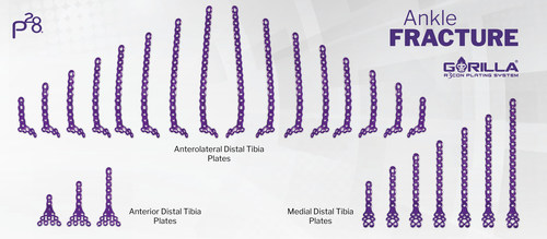 Gorilla® Ankle Fracture Pilon Plating System