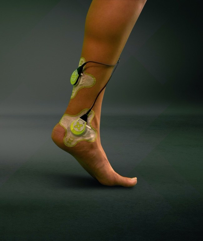 sam® medical device applied to Achilles tendon injury to stimulate collagen-matrix rebuilding to repair the damaged tendon.
