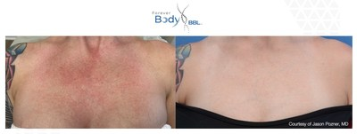 BBL HERO Forever Body™ Before / After