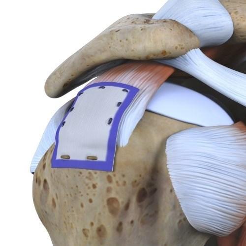 REGENETEN Bioinductive Implant