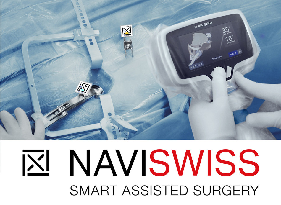 Naviswiss' handheld, image-free miniaturized surgical navigation systems to aid orthopedic surgeons in accurately implanting artificial joints.