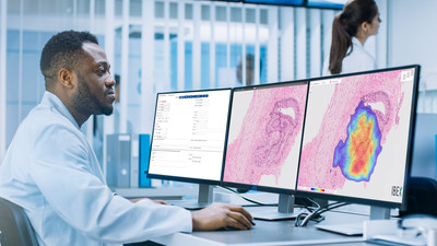 Ibex uses AI to help pathologists minimize diagnostic errors