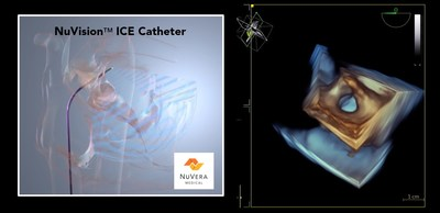 The NuVision™ ICE Catheter guided treatment of an atrial septal defect in NuVera's successful first-in-human use lead by principal investigator Adrian Ebner, M.D. The novel catheter is designed to offer interventional cardiologists and electrophysiologists rapid, real-time 3D, multi-planar insights into structural heart and cardiac ablation, which are difficult to detect with current technology and may require general anesthesia.