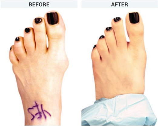 MiniBunion Surgery Before and After