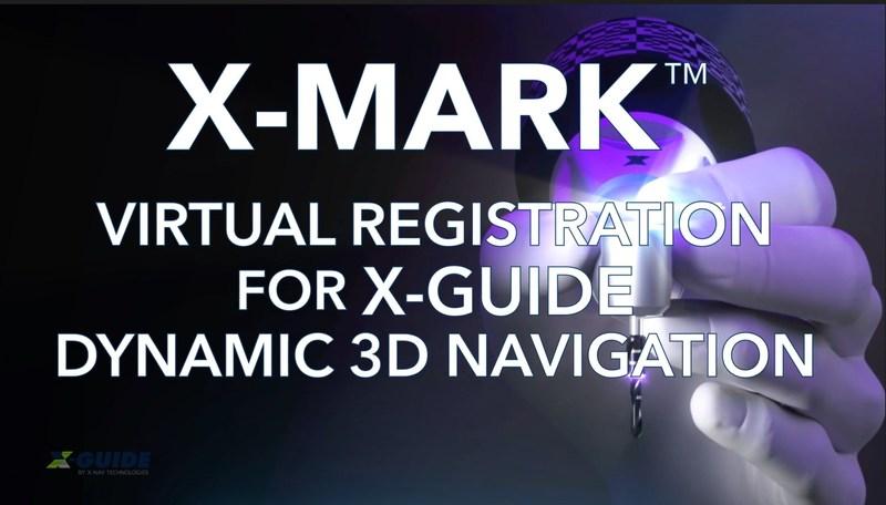 X-Mark Virtual-Based Dental Implant Navigation Surgery