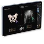 Smith+Nephew announces new RI.HIP NAVIGATION for Total Hip Arthroplasty