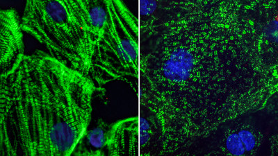Healthy heart muscle (left) created from adult stem cells have long fibers which allow them to contract. SARS-CoV-2 infection causes these fibers to break apart into small pieces (right), which can cut off the cells ability to beat and may explain lasting cardiac defects in COVID-19 patients.