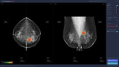 Lunit INSIGHT MMG, AI solution for breast cancer detection from mammograms