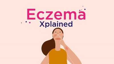 Eczema Xplained